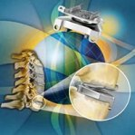 Prestige LP Artificial cervical disc.